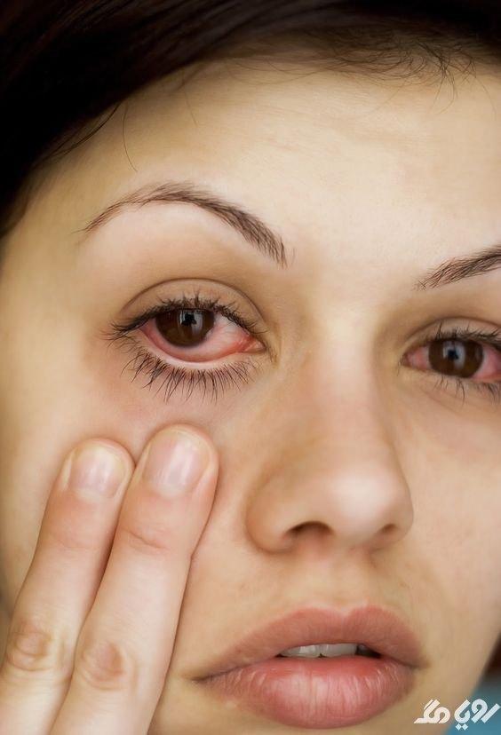درمان آلرژی چشمی
