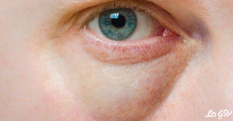 علت پف کردن زیر چشم