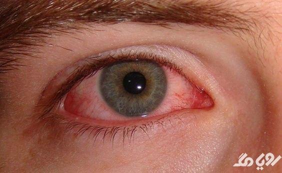 بیماری چشم صورتی