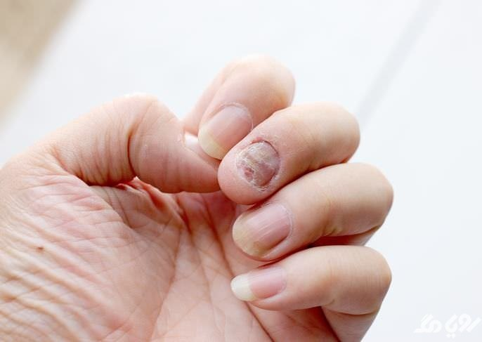 تشخیص بیماری از روی ناخن