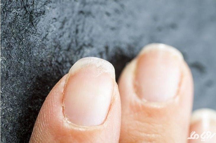 بیماری تیروئید از روی ناخن