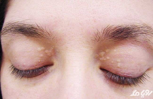 علت لکه های زرد روی پلک چشم