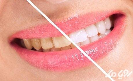 روشهایی برای سفید شدن دندان ها