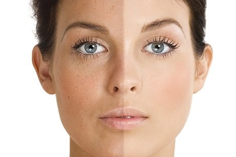 ماسک طبیعی روشن کننده پوست صورت