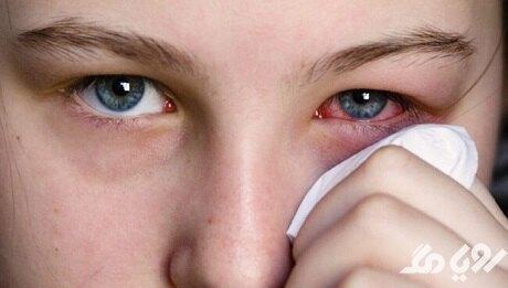 روش های خانگی برای درمان عفونت چشم