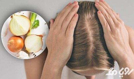 آب پیاز در جلوگیری از ریزش مو